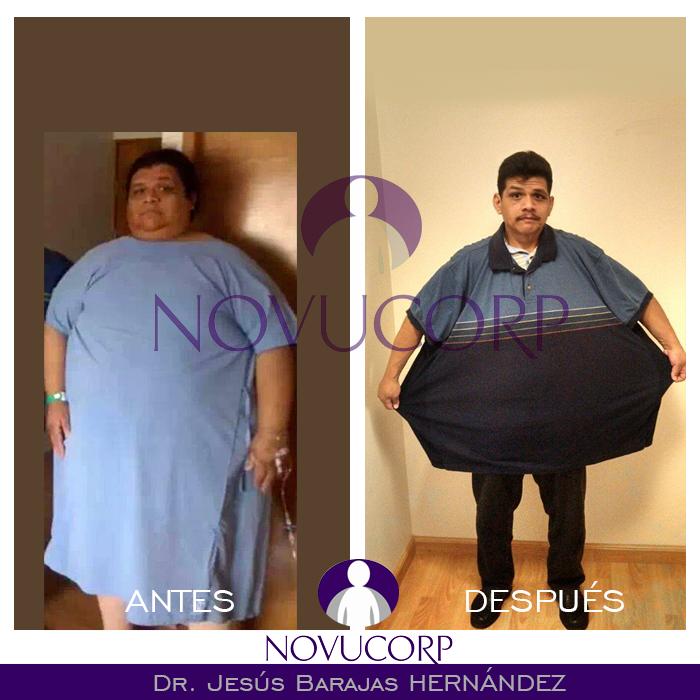 Cirugía de Obesidad Monterrey | ANTES Y DESPUES CIRUGIA